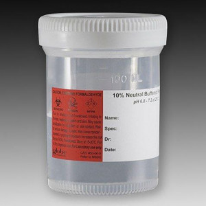 Pre-Filled Container: Tite-Rite, 120mL (4oz), PP, Filled with 60mL of 10% Neutral Buffered Formalin, Attached Hazard Label, 100/Unit